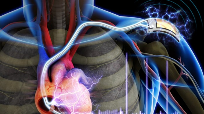Scientists are developing next-generation battery-free implantable pacemakers that may be powered by an unlikely source – the heart itself. Image Credit: GizMag