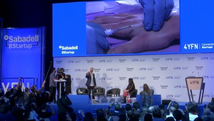 A man volunteered to have a chip inserted under his skin live on stage during a presentation at the Mobile World Congress (MWC 2019) in Barcelona. Rough cut (no reporter narration) | Photo by: Gold Coast Bulletin.